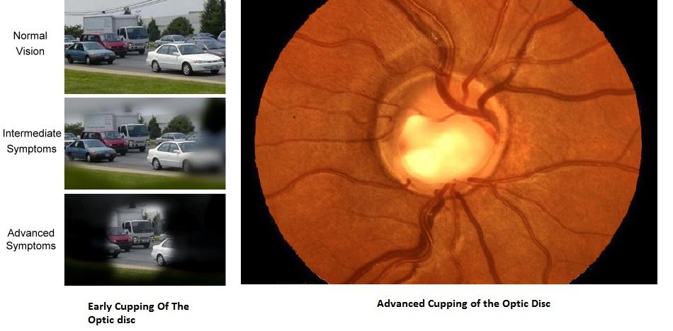 Glaucoma1-1