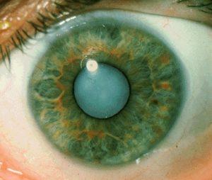 cataract1-300x254