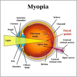 myopia-300x300